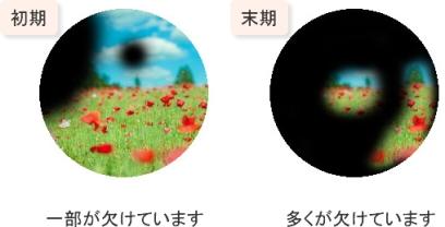 緑内障の視界